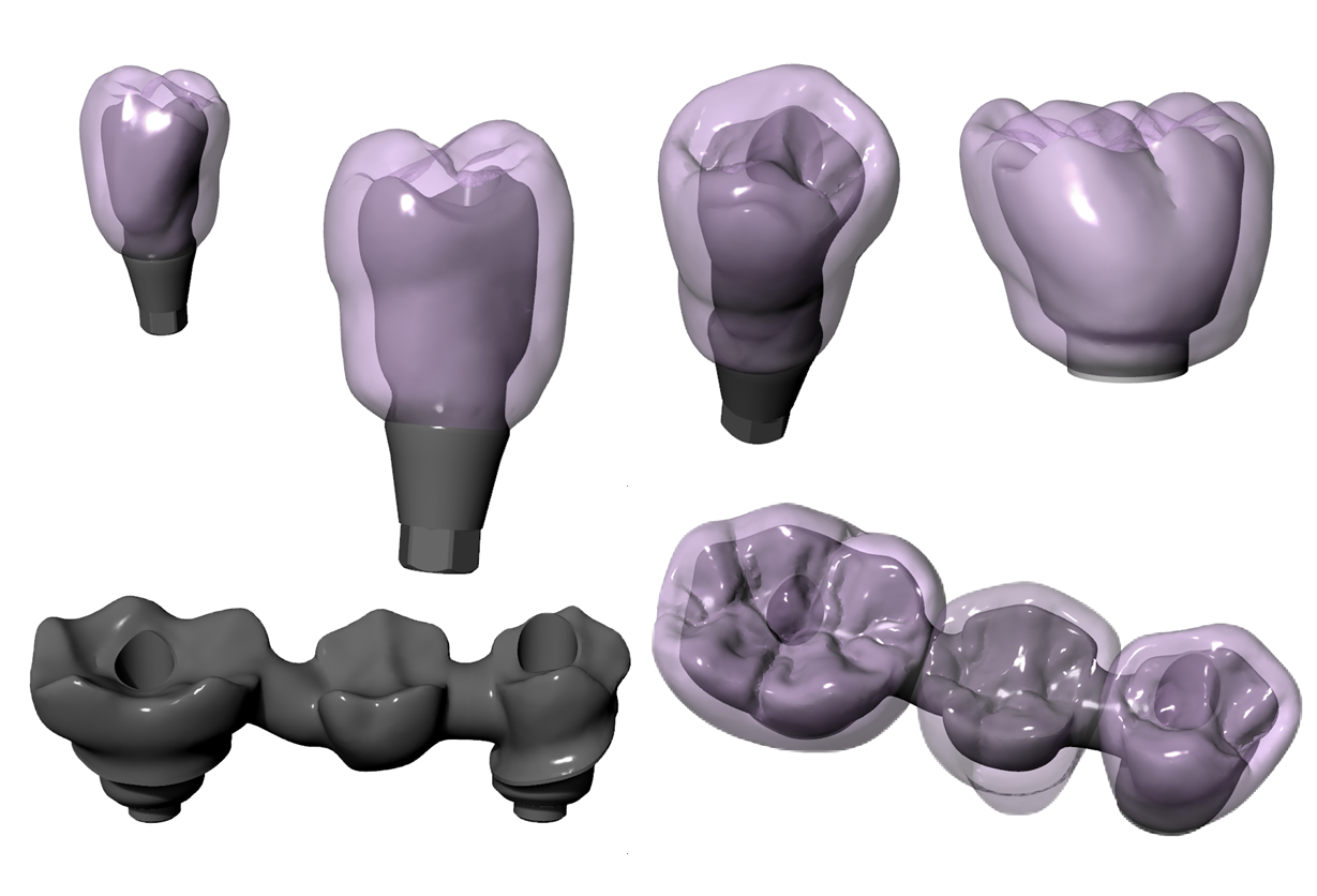 Implant Libraries – Target3D